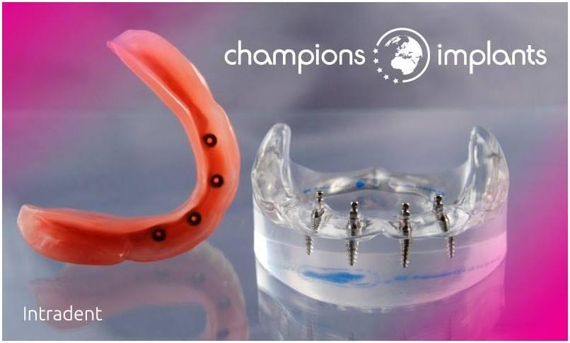 proteza-na-implantatima